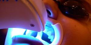 bodrum diş beyazlatma