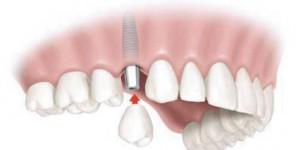 bodrum Oral İmplant