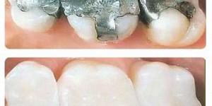 bodrum diş dolgu tedavisi