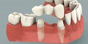bodrum köprü diş estetik