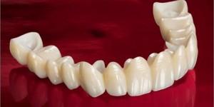 bodrum zirkonyum diş